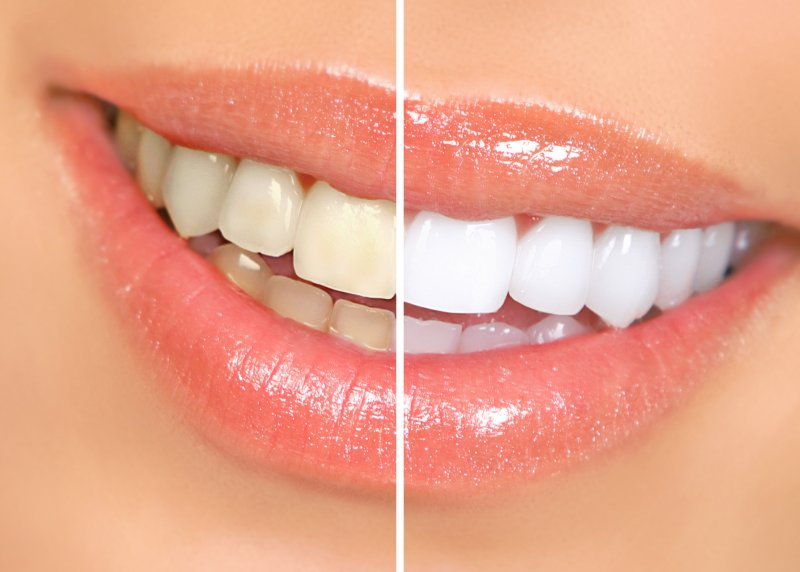 an up-close view of a person's smile before and after teeth whitening