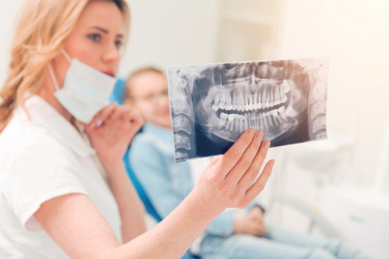dentist showing patient wisdom teeth x-rays